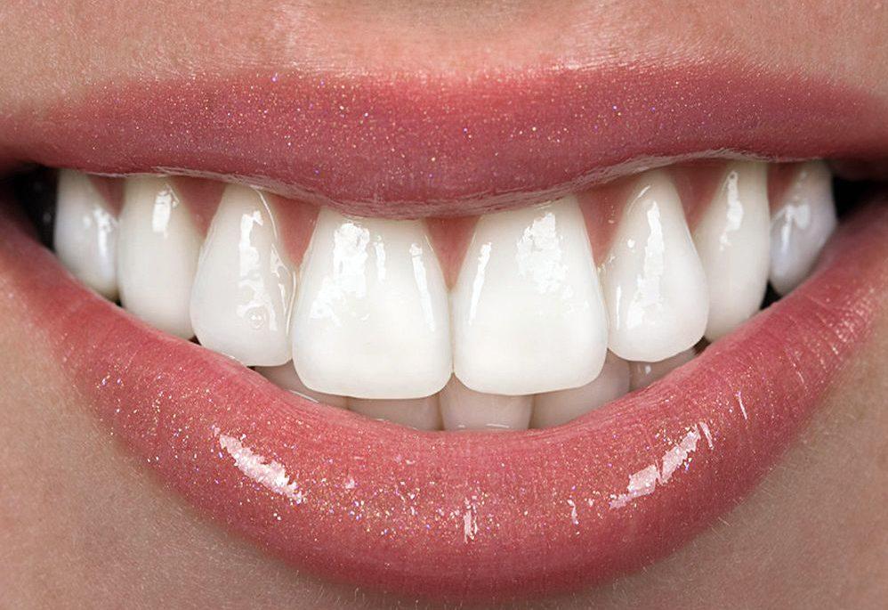 Faccette dentali, quando le cose non vanno come dovrebbero